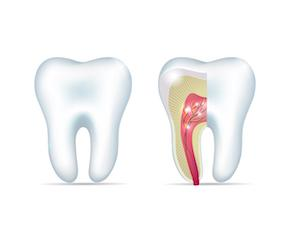 Root Canals in Northridge CA