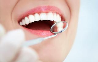 Northridge CA Periodontal Treatment