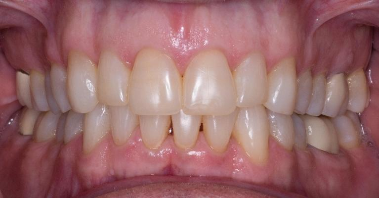 Invisalign-Before-After-After-Image