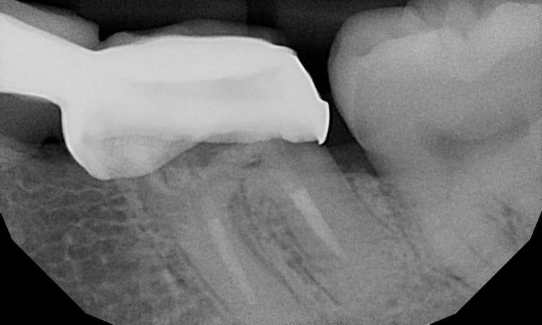 Rubia-s-Implant-Case-Before-Image