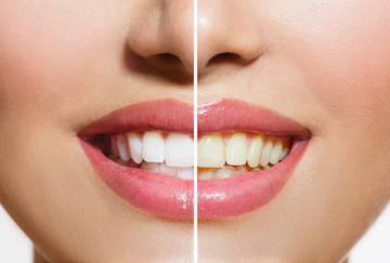 before and after teeth whitening of woman's smile