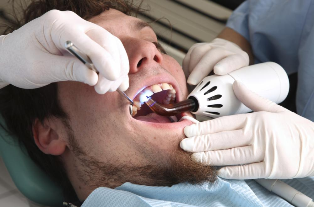 A man gets his mouth worked on in the dental chair | Sedation Dentistry Manhattan Beach