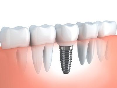 metal dental implant in jaw with porcelain tooth crown