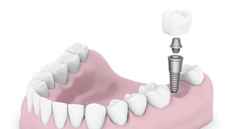 Dental Implant | Modern American Dentistry