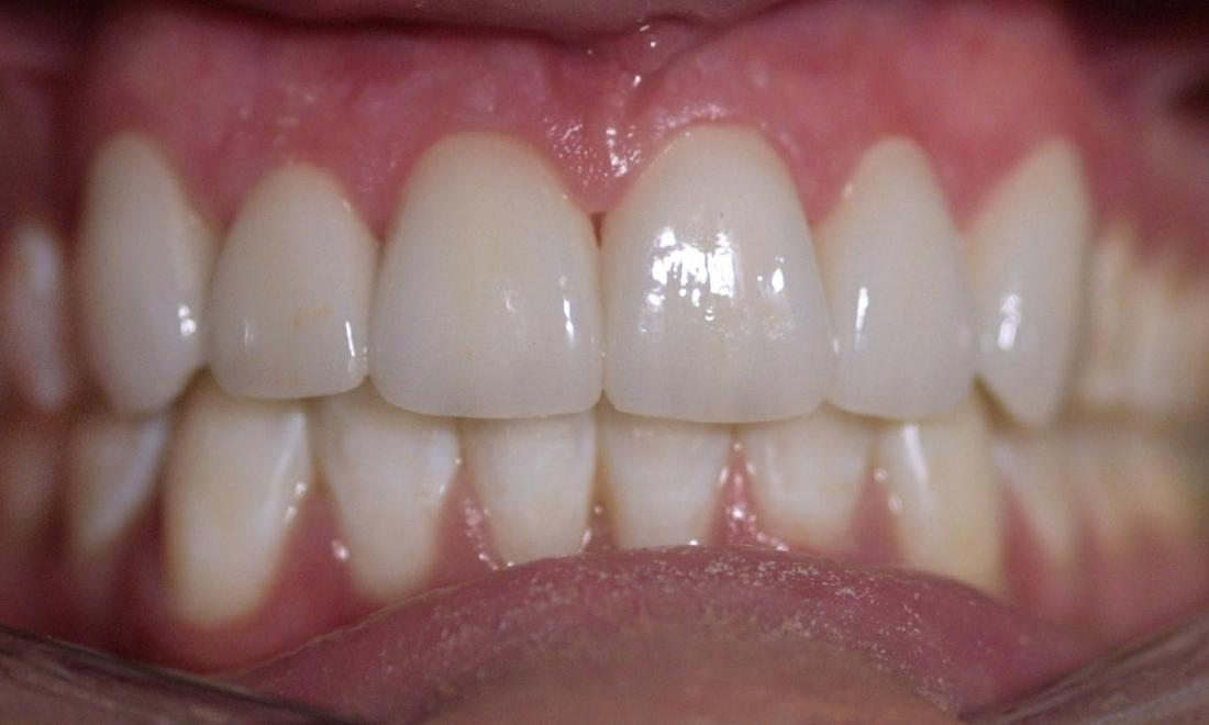 Dental Veneers | Modern American Dentistry