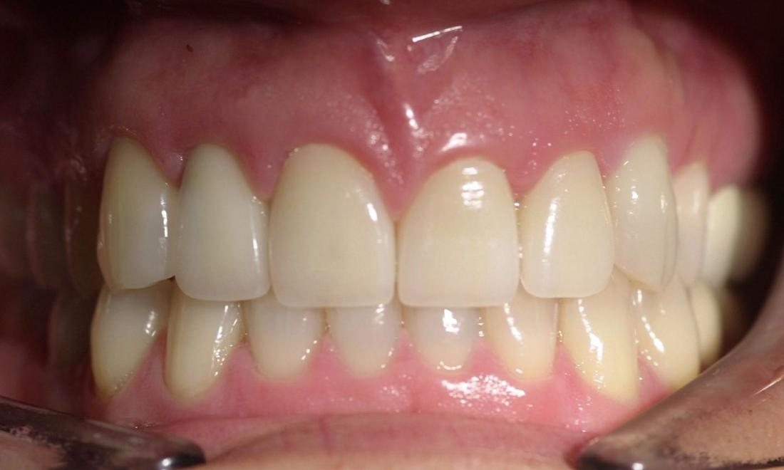 Bruxism Patient After | Modern American Dentistry