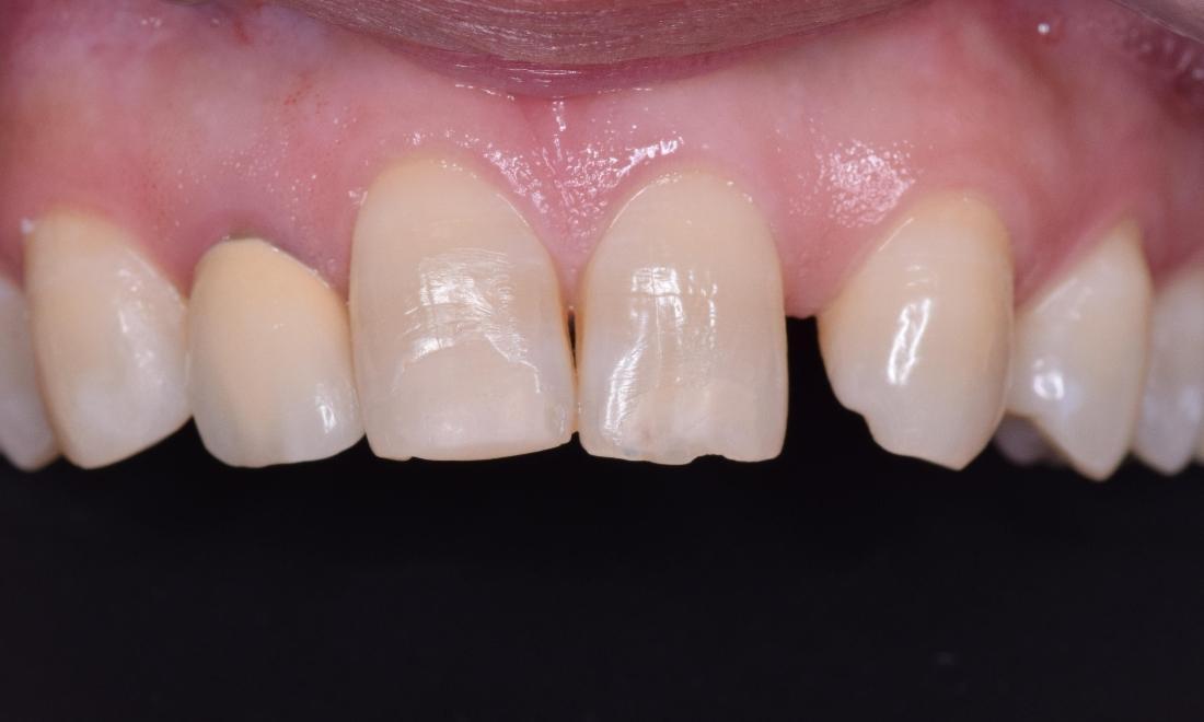 Smile Gallery: Dental Bridges Manhattan Beach and Woodland