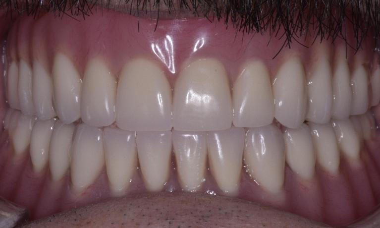 Dentures-After-Image