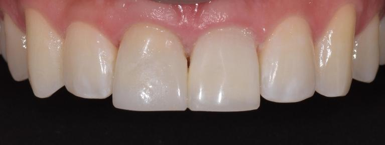 Discolored-Teeth-and-Internal-Whitening-After-Image