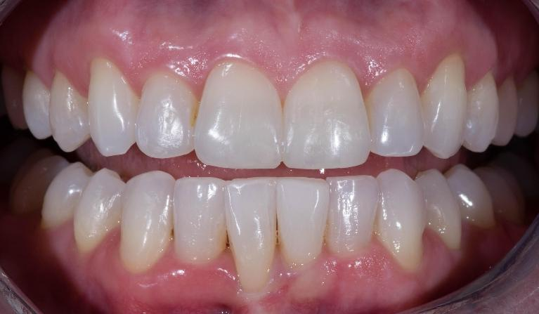 Invisalign-Before-and-After-After-Image