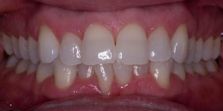 Invisalign-Before-and-After-Before-Image