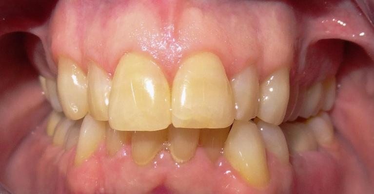 Invisalign-Before-After-Before-Image