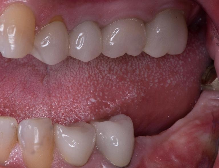 Molar-Implants-Before-Image